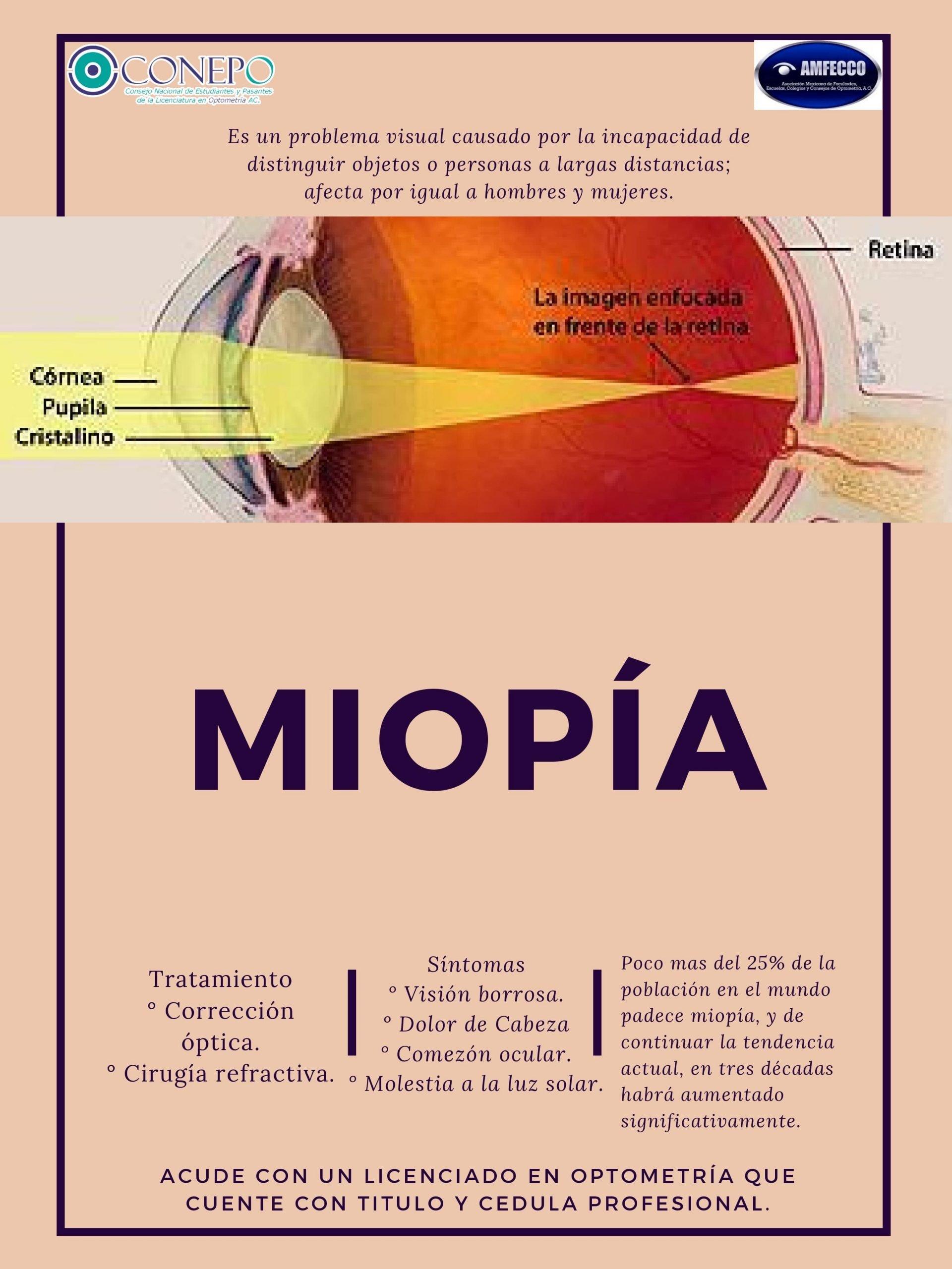 La miopía - CONEPO