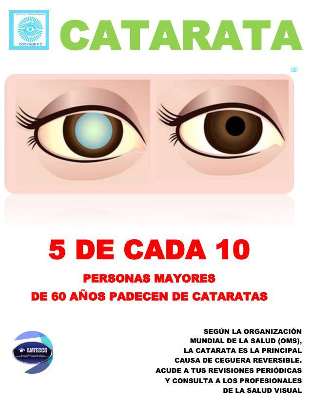 Cataratas - Colegio de optometristas del Estado de Morelos