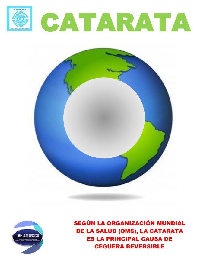 Cataratas - Colegio de optometristas del Estado de Morelos - 2